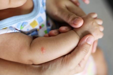 sucking: Mosquito sucking blood on child skin Stock Photo