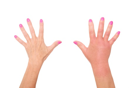 A picture of female hands one swollen because of a wasp sting over white background photo