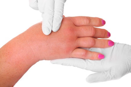 A picture of a swollen hand due to a wasp sting being examined by a doctor over white background