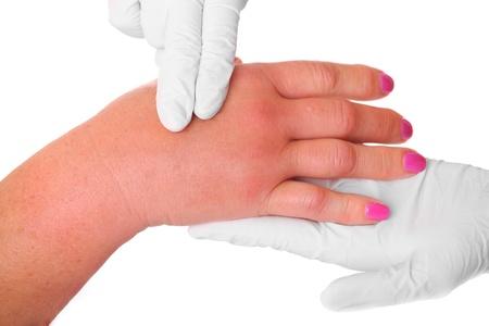 avispa: Una imagen de una mano hinchada debido a una picadura de avispa ser examinado por un médico sobre fondo blanco