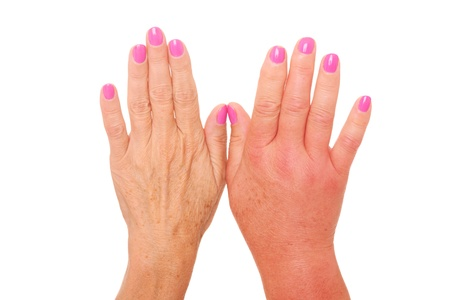A picture of female hands one swollen because of a wasp sting over white background