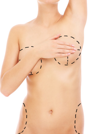 A picture of a female body with plastic surgery marks over white background