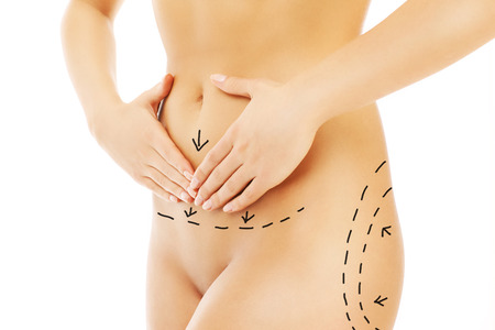 Woman holding hands over belly and plastic surgery markers photo