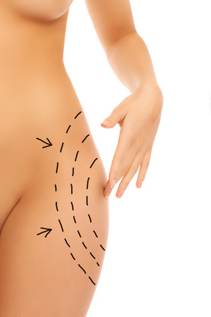 Midsection of female body with surgery markers over white background photo