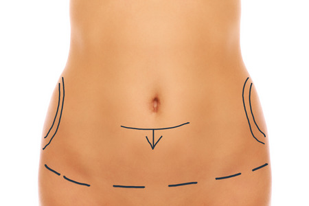A picture of female belly with plastic surgery markers  photo