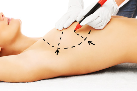 breast beauty: A picture of a doctor marking breast for surgery