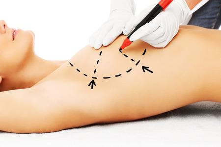 seni: Una foto di un medico per la chirurgia del seno marcatura