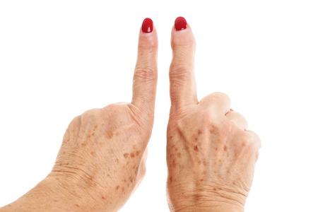 関節リウマチから変形した老婦人の手