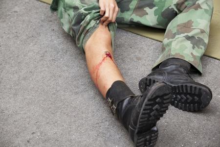 gunshot wound on soldier