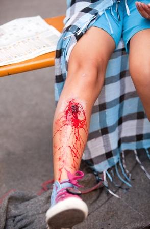 herida: ni�a con lesi�n en la pierna. accidente de simulaci�n de lesiones. Foto de archivo