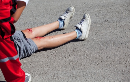 wounds: legs injuries Stock Photo