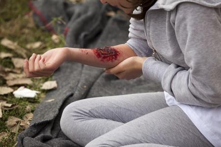 súlyos sérülést a lány