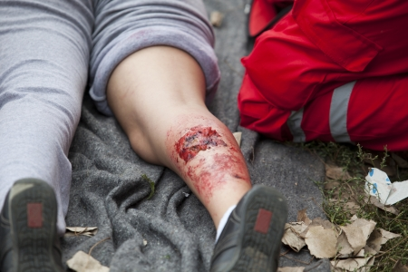 serious injury on girl s leg photo