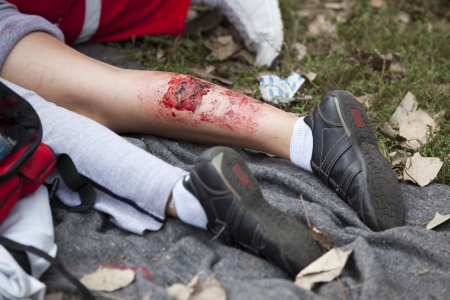 serious injury on girl s leg Stock Photo - 18750624