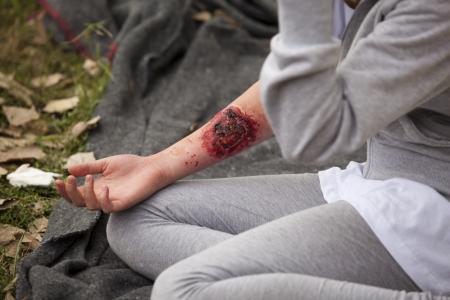 herida: lesiones graves en el brazo de la muchacha s