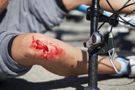herida: bicicleta caída accidente lesiones simulación