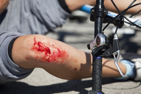 leg injury: bicycle fall  accident injuries simulation  Stock Photo
