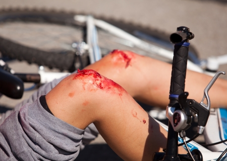 wounds: bicycle fall  accident injuries simulation  Stock Photo