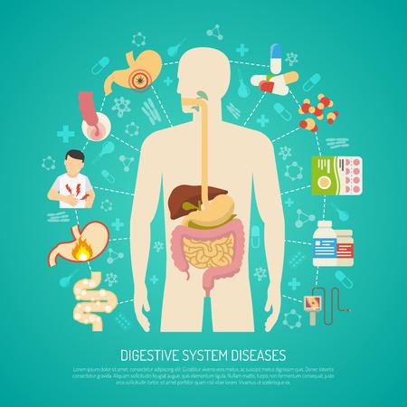 enfermedades del sistema digestivo con cuerpo humano en fondo verde ilustración vectorial plana