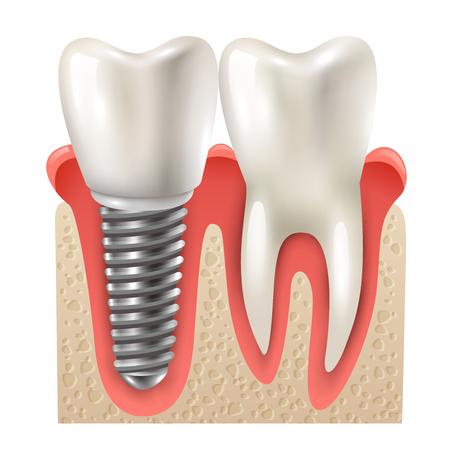 インプラントと歯の設定モデルのクローズ アップ側面リアルな画像ベクトル図