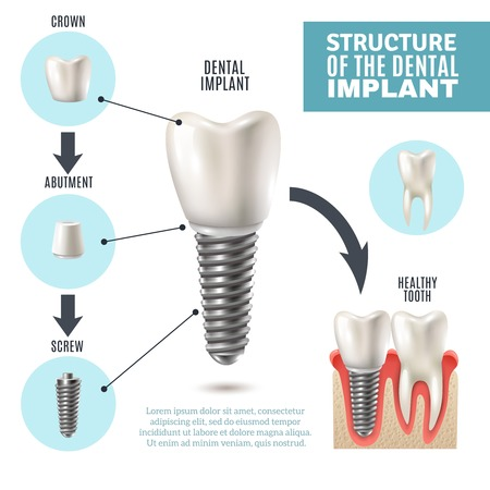 estructura de implante dental médica cartel pictórico infografía educativa con herramientas de modelos sanos ilustración vectorial fin de sustitución molar