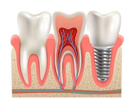 Tandheelkundig implantaat en echte tand anatomie close weggesneden sectie model zijaanzicht realistische vector illustratie