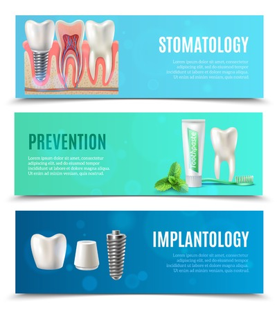 dental implants: Medical oral healthcare 3 horizontal banners set with prevention stomatology and dental implants bookmarks isolated vector illustration