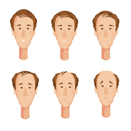 Storyboard with six isolated cartoon male character heads suffering from hair loss with unhappy facial expressions vector illustration Illustration