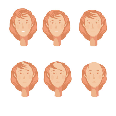Hair loss storyboard composition of six isolated full faces of balding woman character at various points vector illustration Vetores
