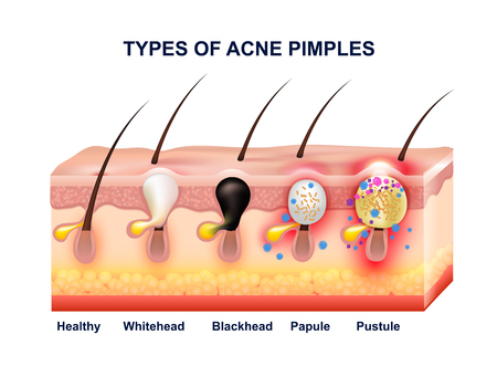 Colored skin acne anatomy composition with types of acne pimples before and after