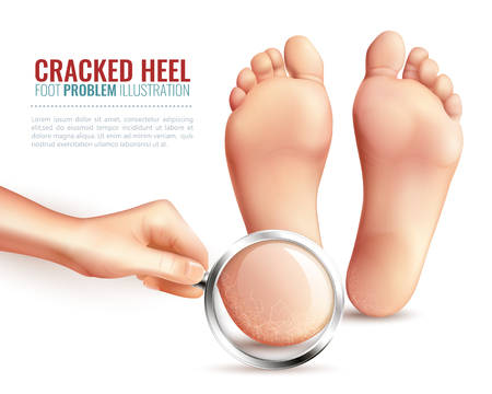 Female hand with magnifier near feet, zoom of cracked heels on white background vector illustration