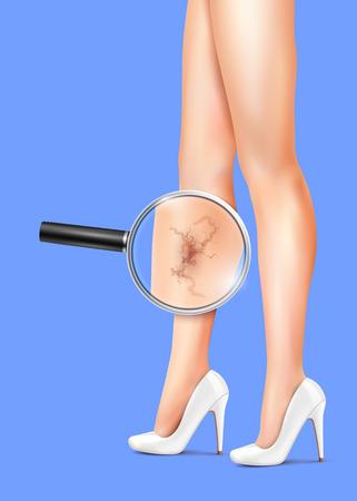 Female slim legs and varicose with health symbols vector realistic illustration