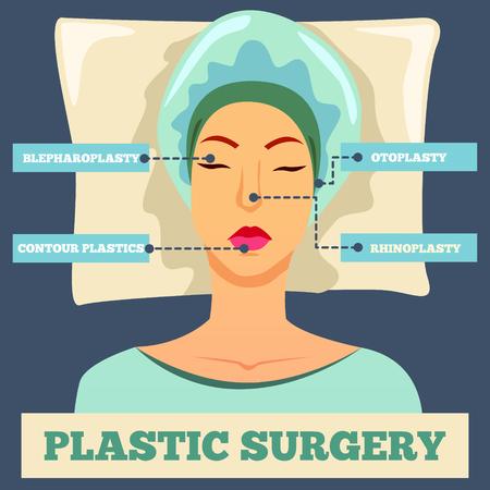 Il fondo piano ortogonale della chirurgia plastica con il fronte femminile ed i tipi di operazioni estetiche vector l'illustrazione Archivio Fotografico - 94902070