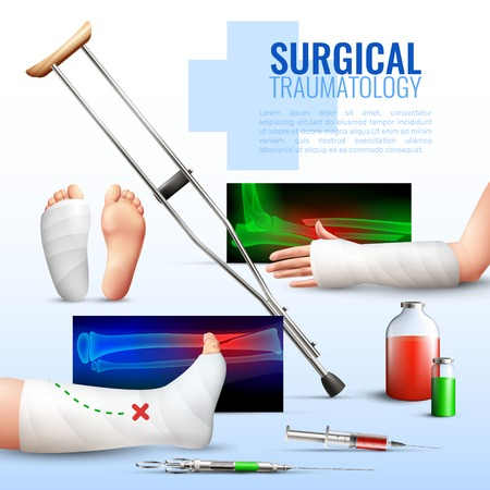 Surgical traumatology realistic concept with hand foot and leg injury symbols vector illustration.