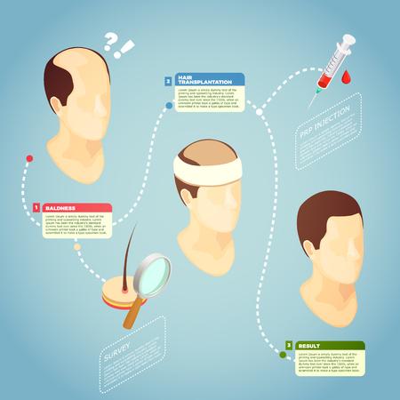 Hair transplantation isometric vector illustration with description surgery procedure of restore hair on bald head