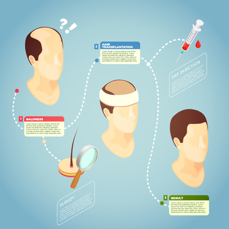 Hair transplantation isometric vector illustration with description surgery procedure of restore hair on bald head