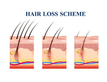 Stages of hair loss on human skin vector illustration