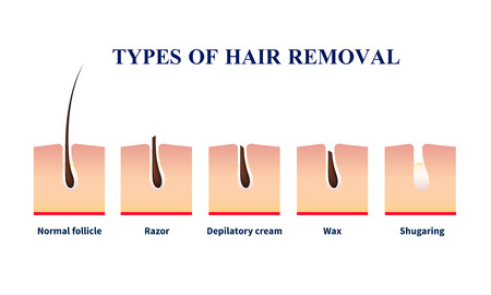 Normal follicle and types of hair removal with help of razor, depilation cream, wax, sugaring vector illustration
