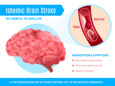 Ischemic brain stroke realistic poster with symptoms list and call to be careful to save life vector illustration Ilustracja
