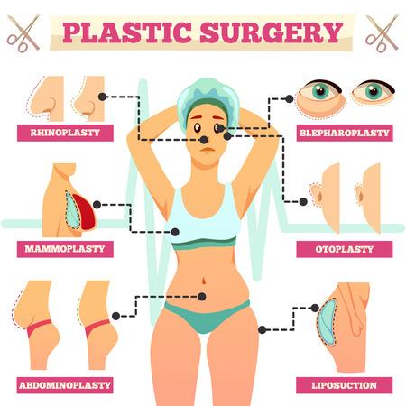 Organigramme orthogonal de chirurgie plastique avec femme et types d'opérations pour illustration vectorielle plane visage et corps