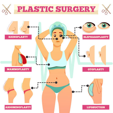 Plastic surgery orthogonal flowchart with woman and types of operations for face and body flat vector illustration Illustration