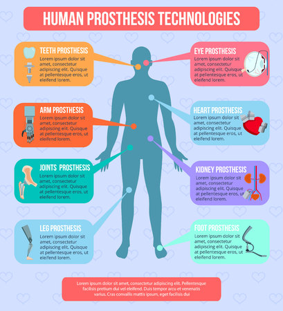 Human medical prothesis modern technologies flat infographic poster with integrated implants robotic arms artificial joints vector illustration  Illustration