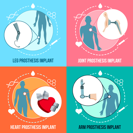 Prothesis medical implants concept flat icons square set with orthopedic leg and joints replacement isolated vector illustration Standard-Bild - 101855736