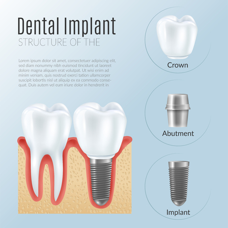 Structure of dental prosthetics infographics poster with denture near healthy tooth crown abutment implant realistic icons vector illustration Ilustração