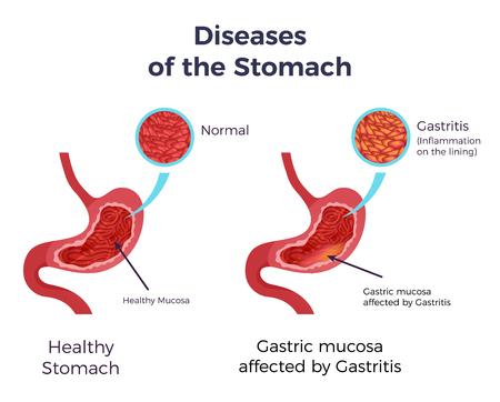 Stomaco umano normale rispetto alla gastrite colpita illustrazione infografica di vettore del manifesto dell'insieme piatto del rivestimento della mucosa infiammata gonfia
