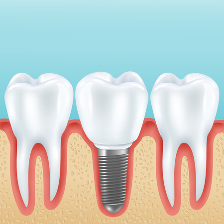 Dental prosthetics realistic vector illustration with healthy teeth and denture crown implanted with implants Illusztráció