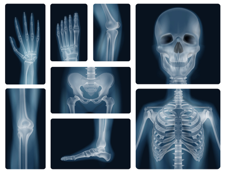 Realistic x-ray shots of human bones of skull pelvis thorax knee and limbs isolated vector illustration