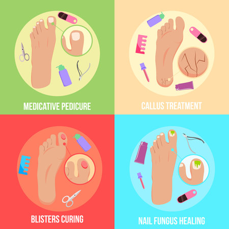 Foot problems flat design concept medicative pedicure treatment of blisters nail fungus healing isolated vector illustration