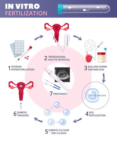 Infografía de fecundación in vitro plana coloreada con pasos desde la estimulación ovárica hasta la ilustración de vector de embarazo