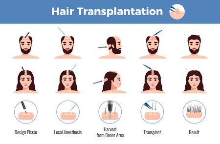 Hair transplantation for men and women with stages of operation infographics on white background vector illustration